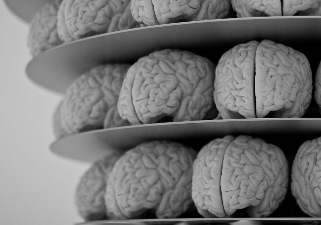 Plastic models of the human brain sit on shelves